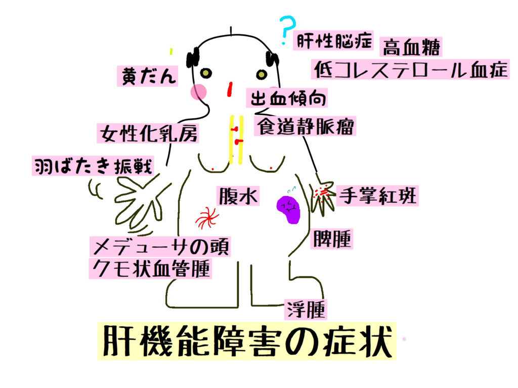 肝 性 脳症 看護