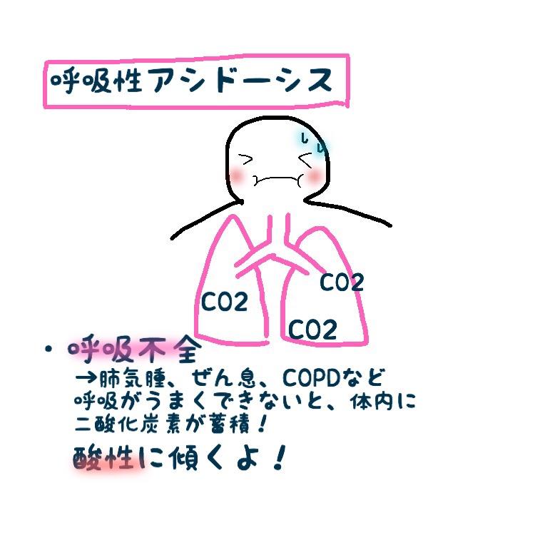 【保存版】アルカローシスとアシドーシスがわかる!酸塩基 ...